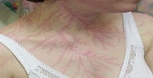 La Fibromialgia.. Su Misterio Por Fín es Resuelto!