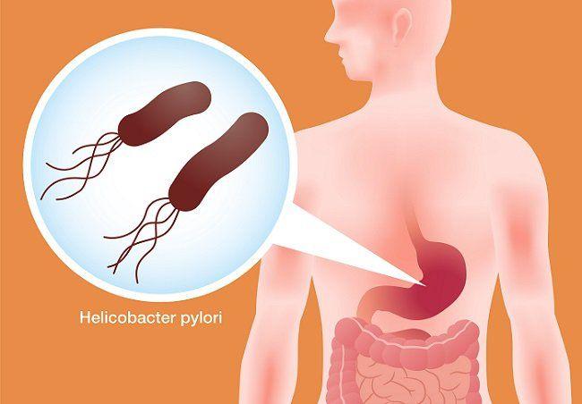 como matar la bacteria del estomago