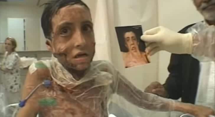Un hombre se llevó a esta chica a su casa tras operarla. 1 año después los papás no pueden creerlo